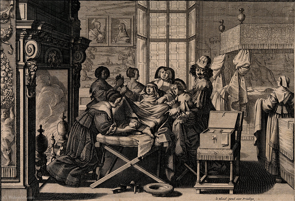 A woman giving birth in an elaborate room aided by a mid-wif by Abraham Bosse (1604-1676, France) | Reproductions Abraham Bosse | ArtsDot.com